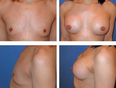 Breast implants videos breast augmentation virginia jpg 666x506