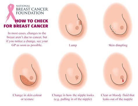 Breast cancer screening welcome to jpg 800x618